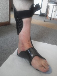 Dynamic Ankle Foot Orthosis InnovPulse without shoes